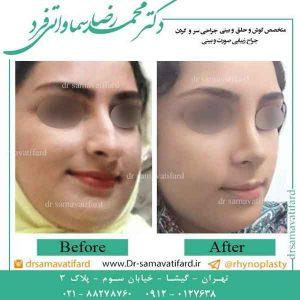 انتخاب جراح بینی