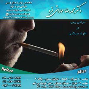 جراحی بینی در افراد سیگاری