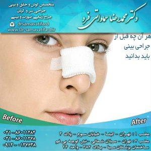 هر آن چه قبل از جراحی بینی باید بدانید