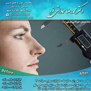 متخصص جراحی بینی