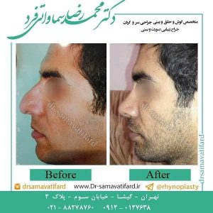 بهترین جراح بینی در تهران