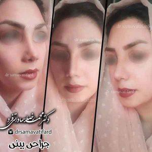دکتر زیبایی بینی در تهران