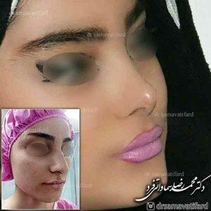 جراحی بینی عروسکی