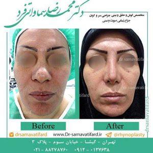 عمل جراحی بینی گوشتی