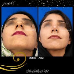 جراحی بینی 21