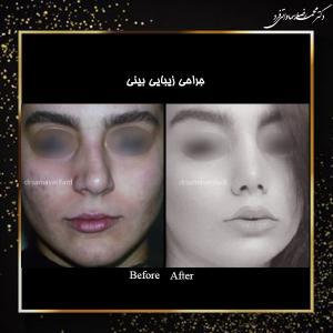 جراحی بینی 3