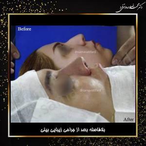 جراحی بینی 35