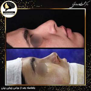 جراحی بینی 447