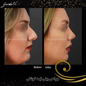 جراحی بینی 45