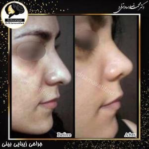 جراحی بینی 479