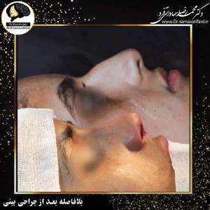جراحی بینی 551