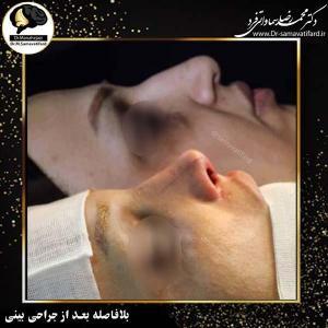 جراحی بینی 554