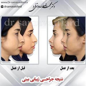جراحی بینی 68