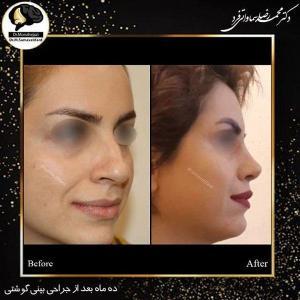جراحی زیبایی بینی 114