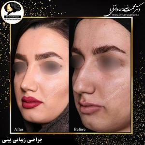 جراحی زیبایی بینی 23