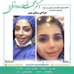 جراحی-بینی-76