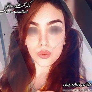 جراحی بینی 37