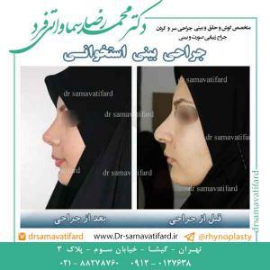 جراحی بینی 7